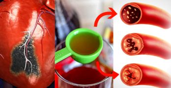 Only 2 Tablespoons of this ingredient Unclog Arteries and Lower High Blood Pressure Naturally