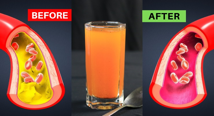One Glass Per day Will Unclog Arteries and Control High Blood Pressure