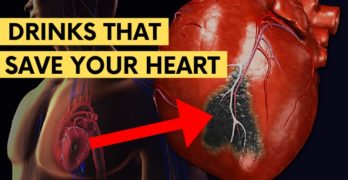 Drinks to lower Cholesterol level, Avoid Heart Disease and Stroke